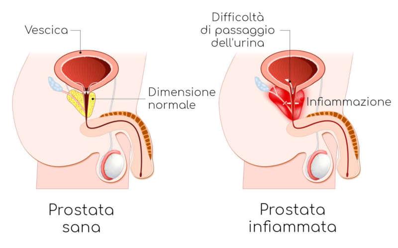 prostata sana e infiammata